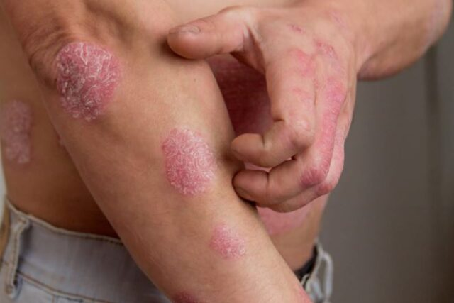 The Types of Psoriasis Explained