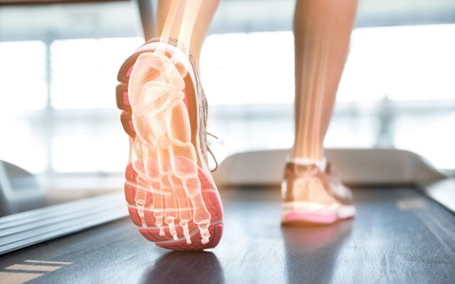 Plantar Fasciitis Symptoms & DIY Home Remedies
