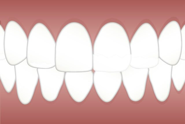 treatment for teeth whitening