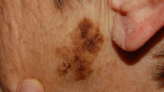 Determining Skin Cancer Moles: Skin And Mole Check