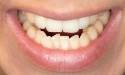 How Much Does It Cost to Fix a Crooked Tooth
